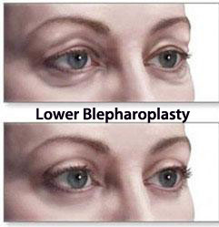 Operasi kelopak mata Blepharoplasty