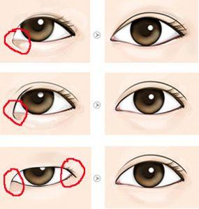 operasi kelopak mata Epicanthoplasty