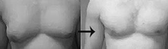 Gynecomastia – Man Breast Reduction