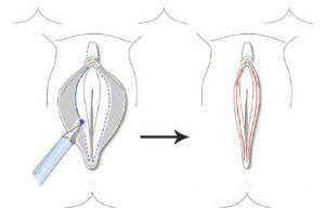 biaya operasi labiaplasty