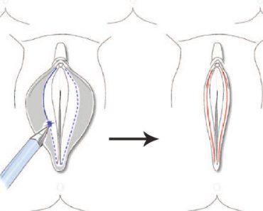 Operasi Labiaplasty – Merapikan Bibir Vagina