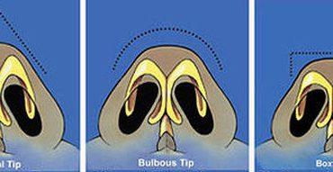 Memancungkan Hidung – Rhinoplasty