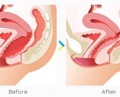 Mengencangkan Vagina – Vaginoplasty