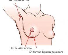 Sayatan Operasi Implant Payudara
