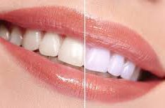 Bleaching Gigi Putih dan Menarik