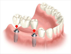 Gigi palsu bridge implant