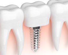 Pasang implant gigi
