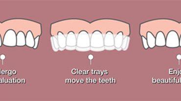 Meluruskan Gigi Dengan Invisalign