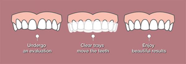 Proses Meluruskan gigi dengan invisalign