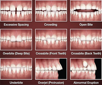Pasang Behel Merapikan Gigi